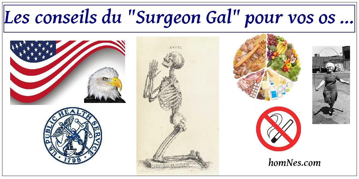 Les conseils du Surgeon Général Ostéoporose