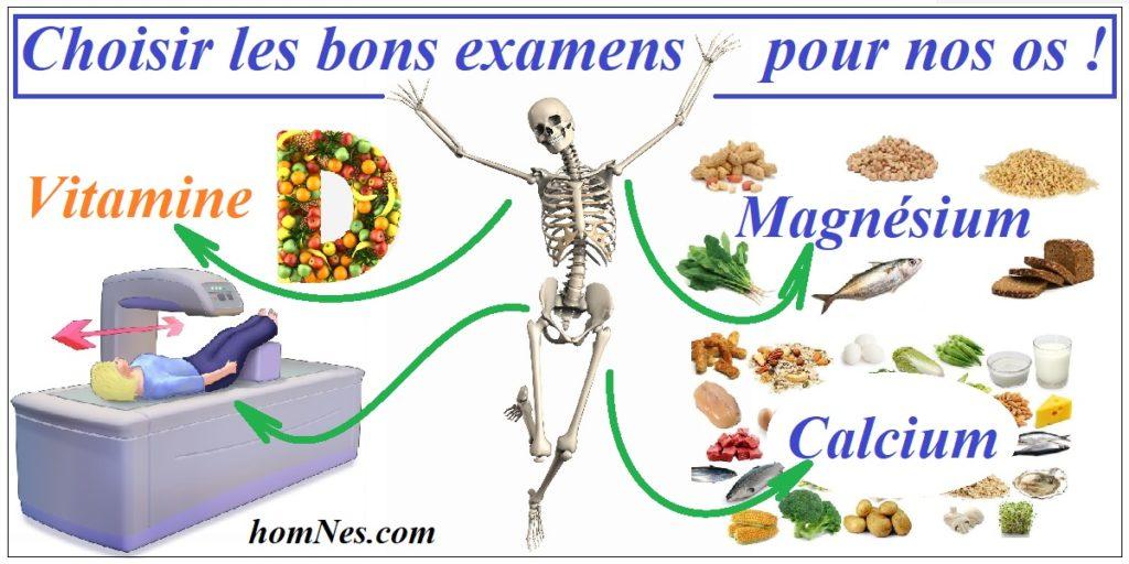 Tests & Examens ostéoporose - homNes