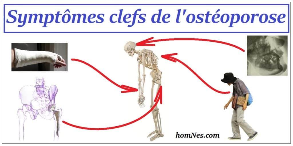Symptômes de l'ostéoporose et de l'ostéopénie