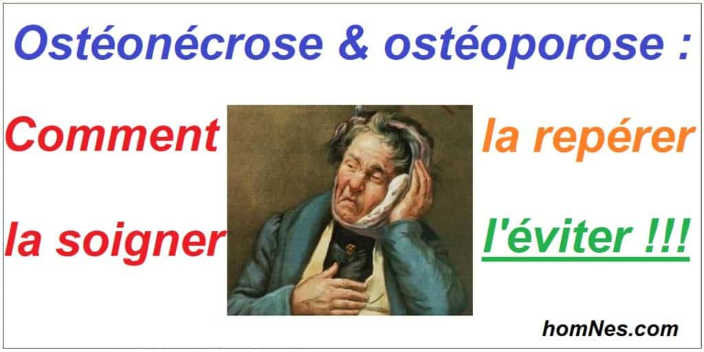 Osténoécrose & ostéoporose : l'éviter, la dépister, la soigner - homNes