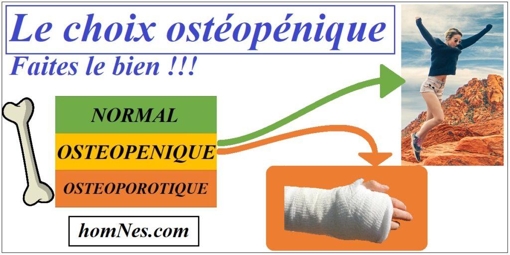 Patiente Ostéopénique : situation, os, femme... homNes.com